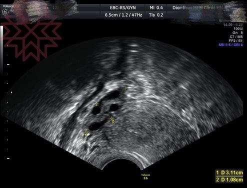 多囊性卵巢症